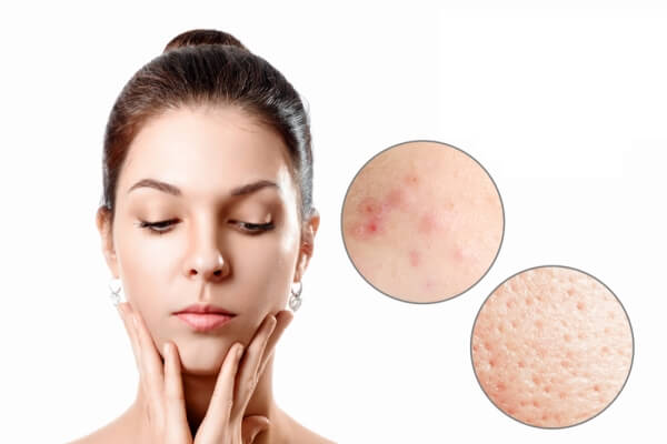 acne laser treatment in kl