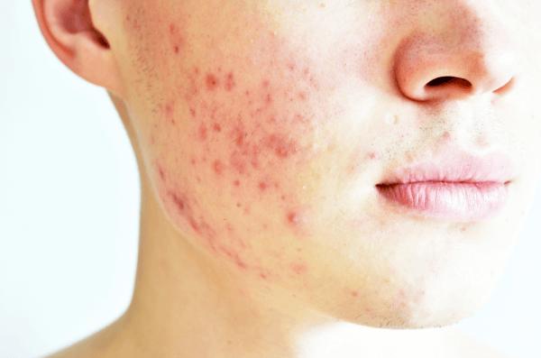 Scar / Pores