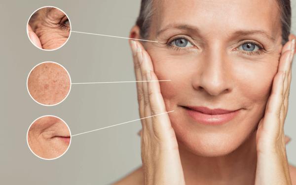 Wrinkles / Fine Line